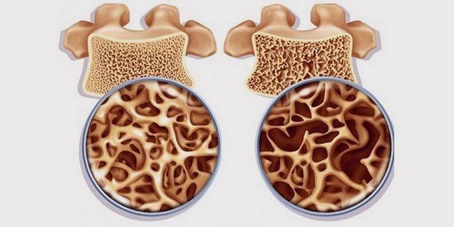 Бісфосфонати для лікування остеопорозу