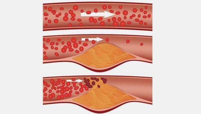 Норма холестерину у чоловіків