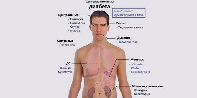 Ознаки цукрового діабету у чоловіків