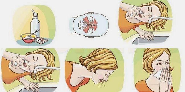 Промивання носа сольовим розчином
